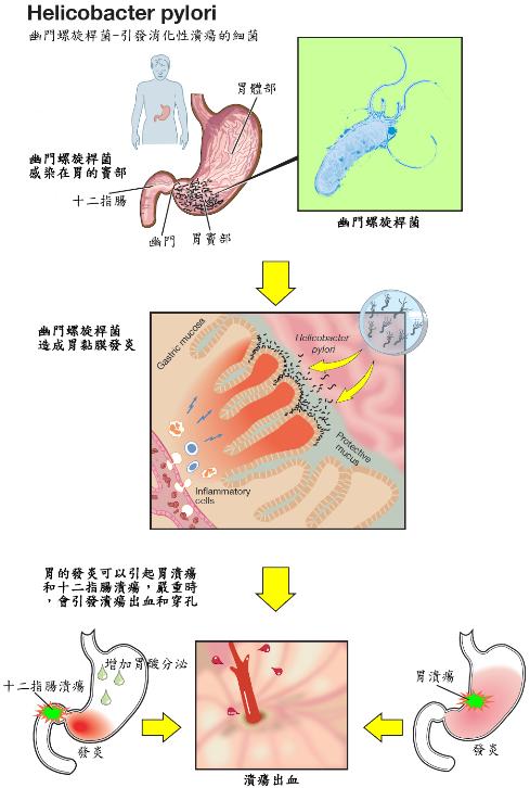 消化性潰瘍- 嘉義長庚一般外科